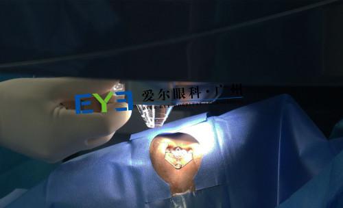 圆锥角膜患者小梁的眼睛呈圆锥状