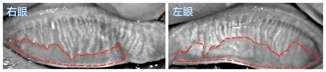 ▲岑姨双眼睑板腺开口堵塞、睑板腺萎缩(红色线标处)